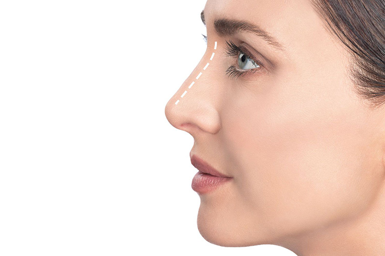 Profiloplastyka: zyskaj idealny profil dzięki wykorzystaniu kwasu hialuronowego|stripslashes